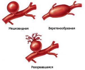 Виды аневризмы грудной аорты