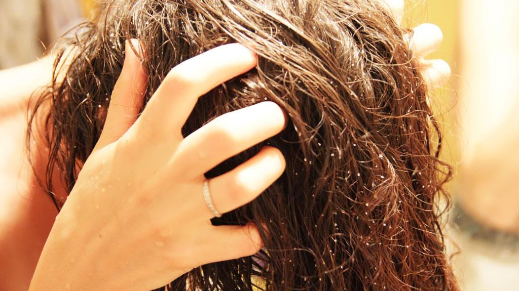 Пилинг кожи головы в домашних условиях 4-7