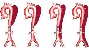 Типы расслаивающей аневризмы аорты