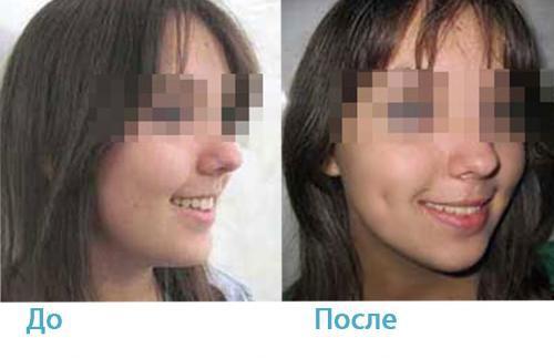 ямочки на щеках после операции