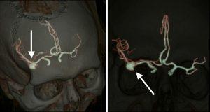 Диагностика аневризмы сосудов головного мозга