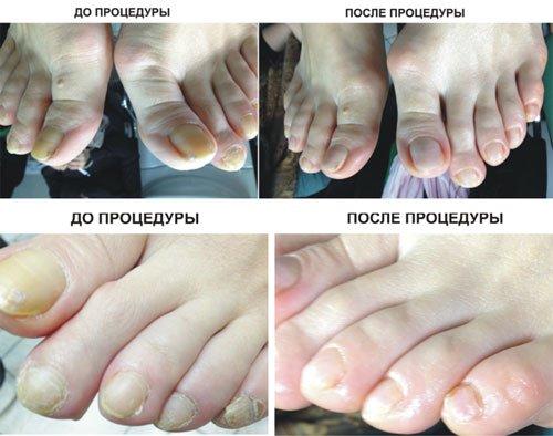 до и после аппаратного педикюра
