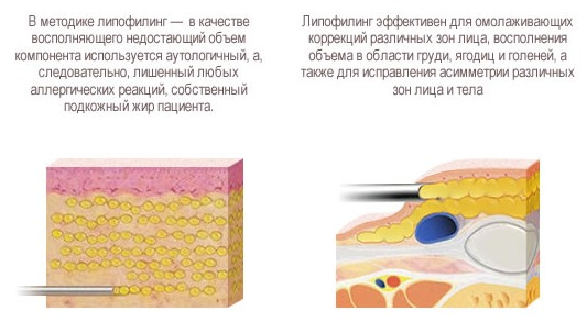 липофилинг груди преимущества