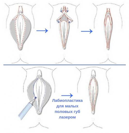 коррекция половых губ