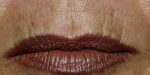Почему появляются морщины вокруг рта, как от них избавиться