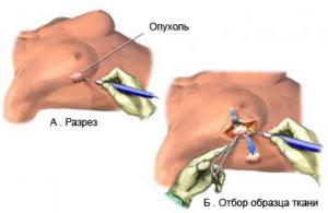 процесс забора ткани на биопсию