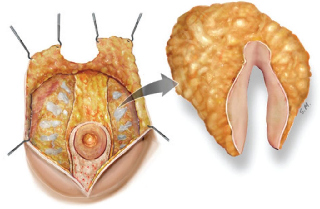 виды редукционной маммопластики