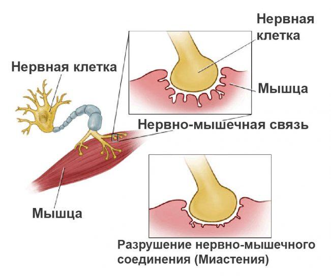 Ксеомин от миастении
