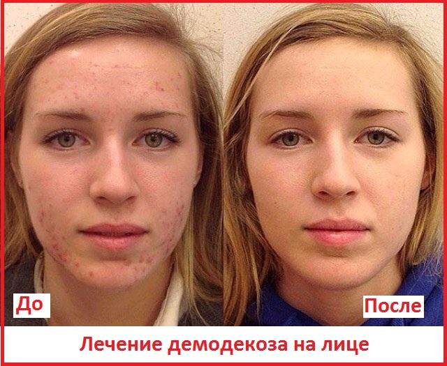 демодекс на лице до и после