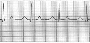 Синусовая аритмия сердца у ребенка