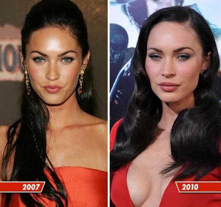 до и после пластики меган фокс