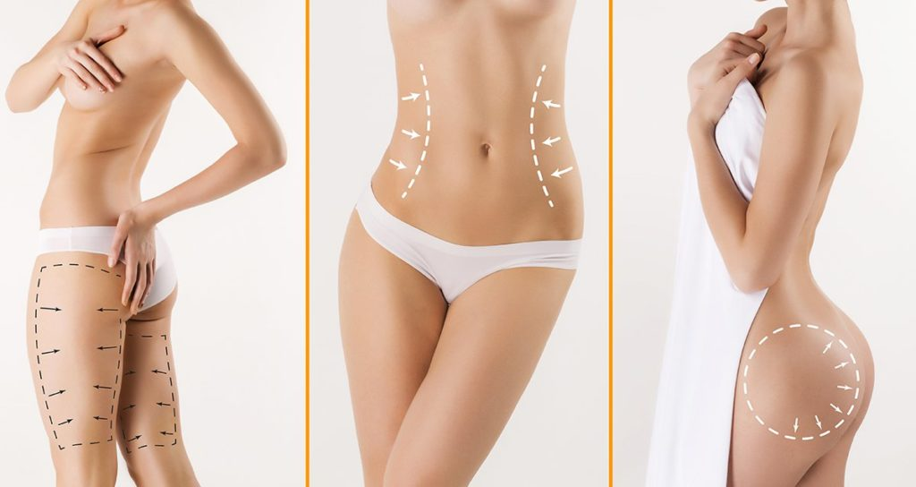 армопластика и тело