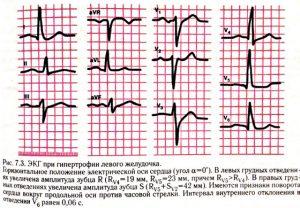 Показатели ЭКГ при гипертрофии левого желудочка